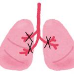 気管支喘息では、気管支の内側が炎症により細くなります。